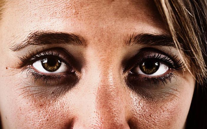 тъмни кръгове под очите