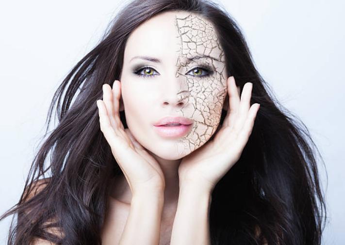 жена с проблемна кожа