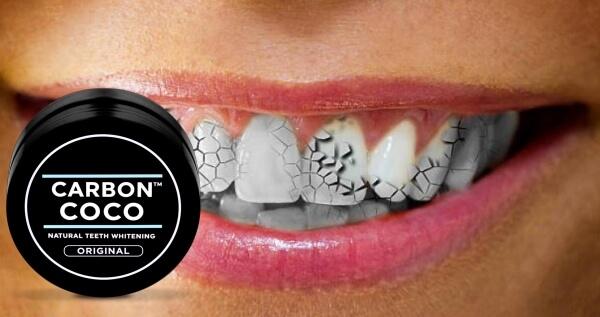 Carbon Coco , Проблемни зъби