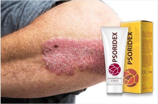 psoridex, крем, псориазис