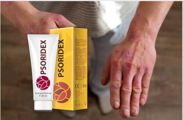 psoridex, псориазис