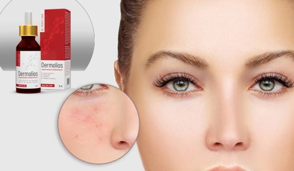 дермолиос, проблемна кожа