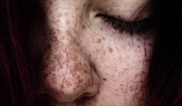 гладуване на кожата, диета на кожата