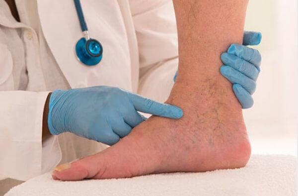 лечение варикозни вени