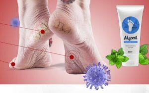 MyCeril – Био-Крем за Крака с Формула Против Гъбички и Бактерии!