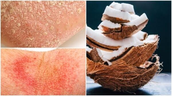 кокос псориазис лечение