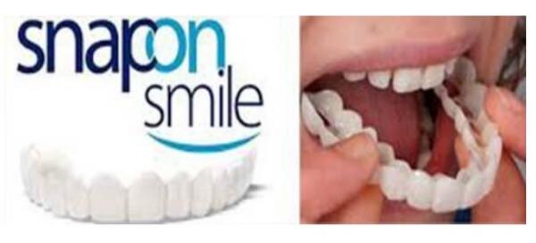 фасети за бели зъби снап он смайл