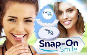Snap-On Smile – Бързо Решение за Блестяща Усмивка! Клиентски Мнения и Цена!